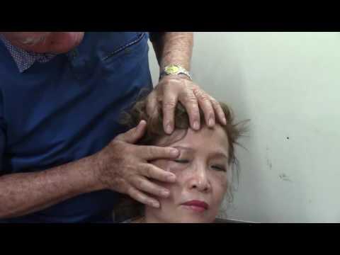 Tê liệt mặt, mắt mờ do áp huyết và đường thấp