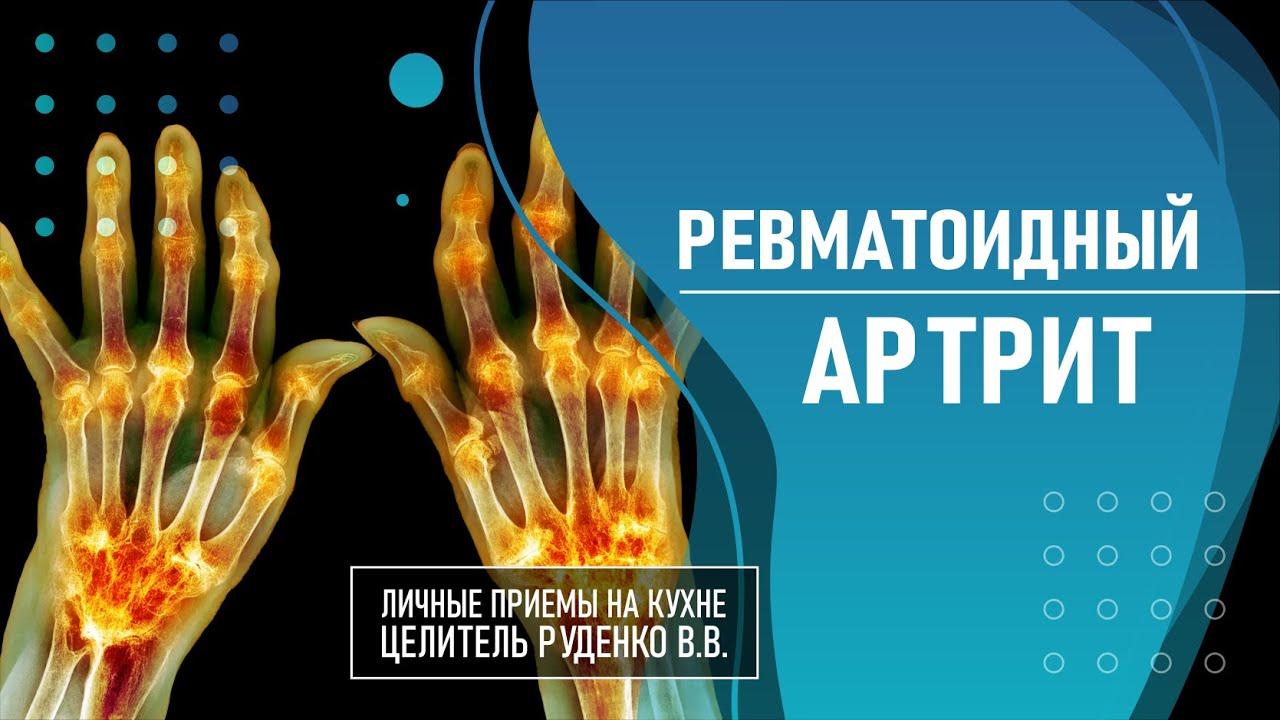 Ревматоидный артрит. Руденко В.В. Академия Целителей.