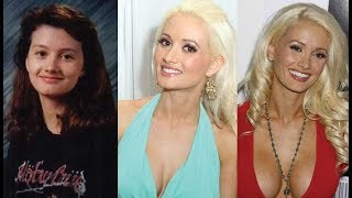 Holly Madison Then and Now 2018 (Plastic Surgey)