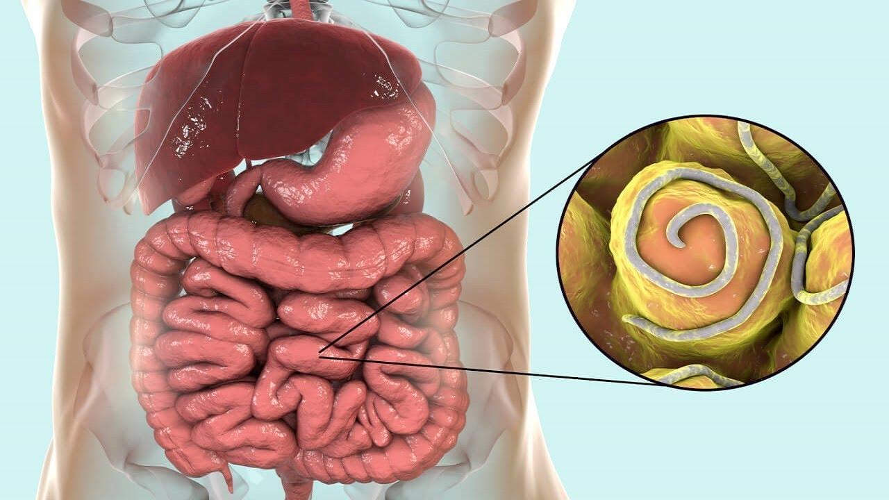 hogyan kell kezelni a pinworms t felnőttkorban