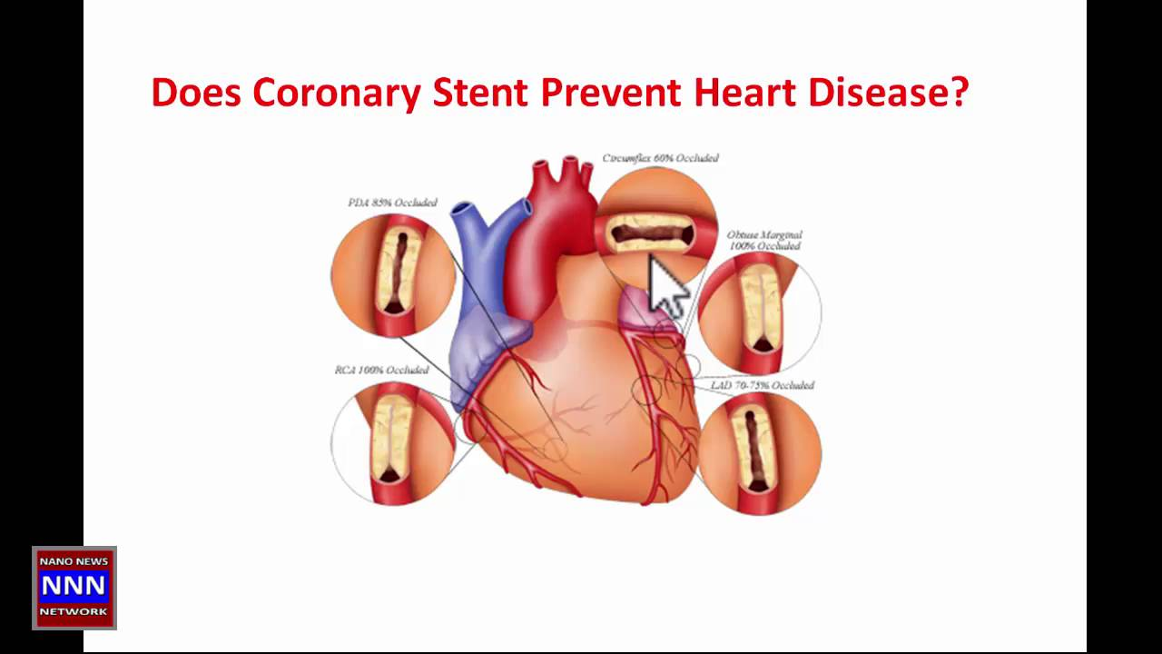 a research on coronary artery disorder a common heart disease While coronary heart disease is a disorder passed down in heart failure or a problem with how the heart beats because coronary artery disease can.