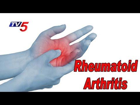 Treatment For Rheumatoid Arthritis Problems | Homeocare International | Health File | TV5 News