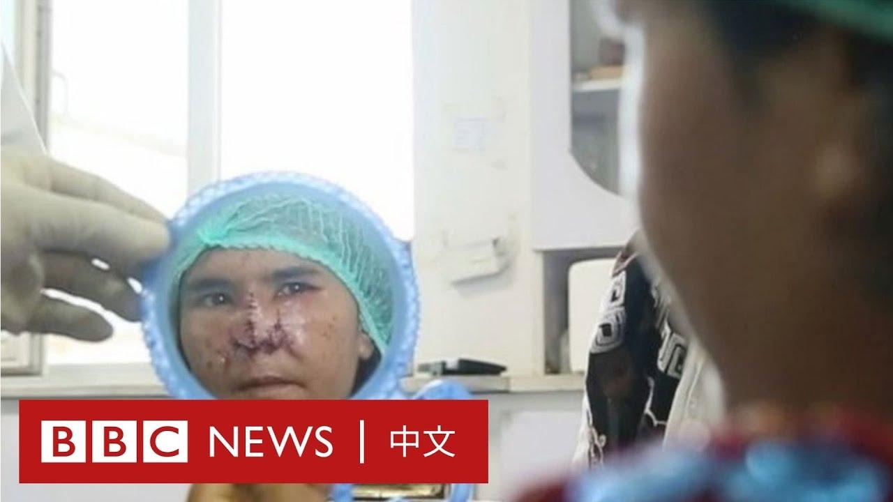 她遭丈夫切掉整個鼻子 飽受家暴還失去兒子撫養權- BBC News 中文
