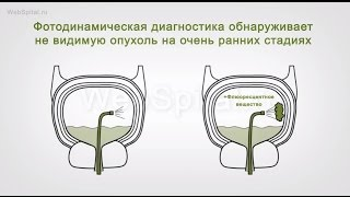 Диагностика рака мочевого пузыря(, 2015-09-15T19:29:28.000Z)