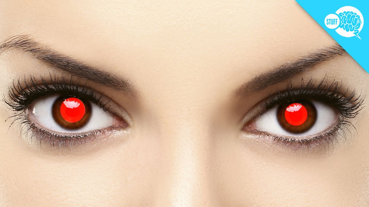 what causes red eye in photos