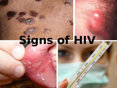 Symptoms and signs of HIV infection