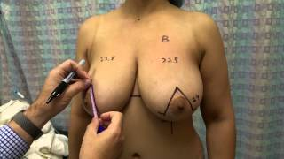 Preparation for Breast Reduction: Markings