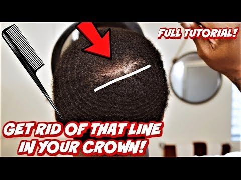 HOW TO GET RID OF THAT BIG LINE IN YOUR CROWN! (360 WAVE FULL CLOSE CROWN TUTORIAL)