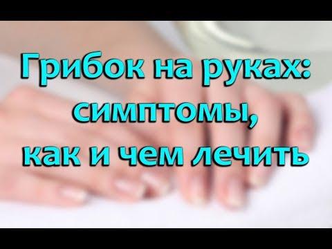 Как вылечить грибок на пальцах рук