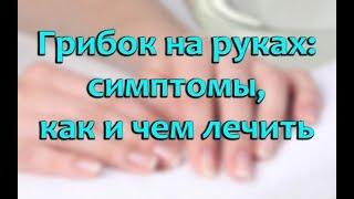Грибок кожи рук: как выглядит, симптомы и лечение