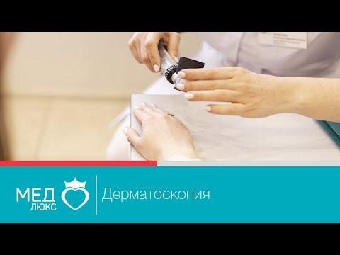 Дерматоскопия. Лечение различных заболеваний кожи. Дерматология в клинике Медлюкс.