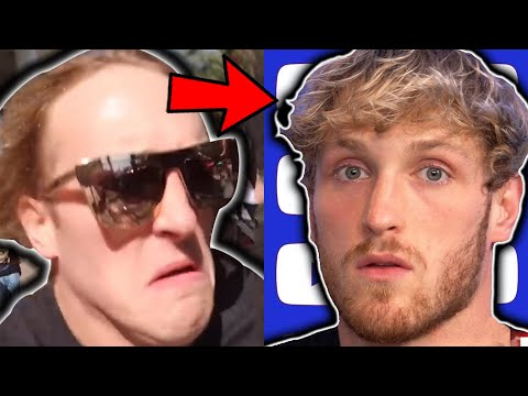 how-logan-paul-reversed-his-hair-loss