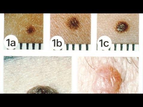 Non-Melanoma Skin Cancers | Skin Cancer