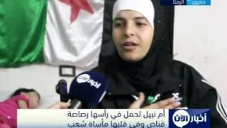 أم نبيل تحمل في رأسها رصاصة قناص وفي قلبها مأساة شعب