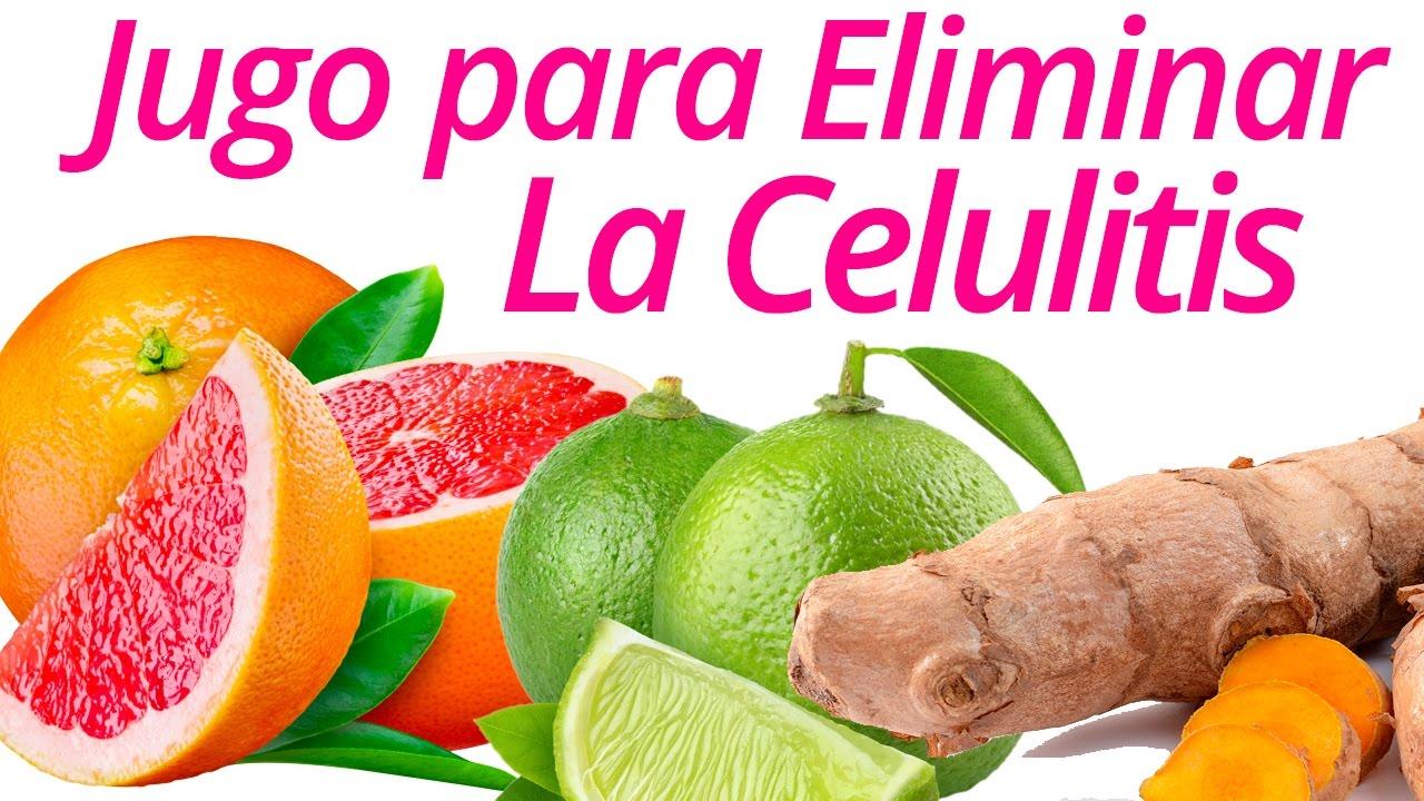 Remedios cara en celulitis caseros la