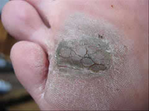 PLANTAR WART REMOVAL - YouTube