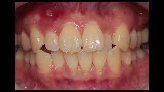 치아교정비용, 2월말까지! 교정치료를 고민중이시라면? …