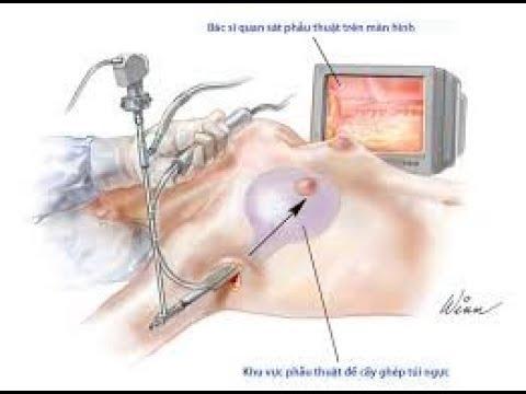 Rủi ro khi nâng ngực  VTC14