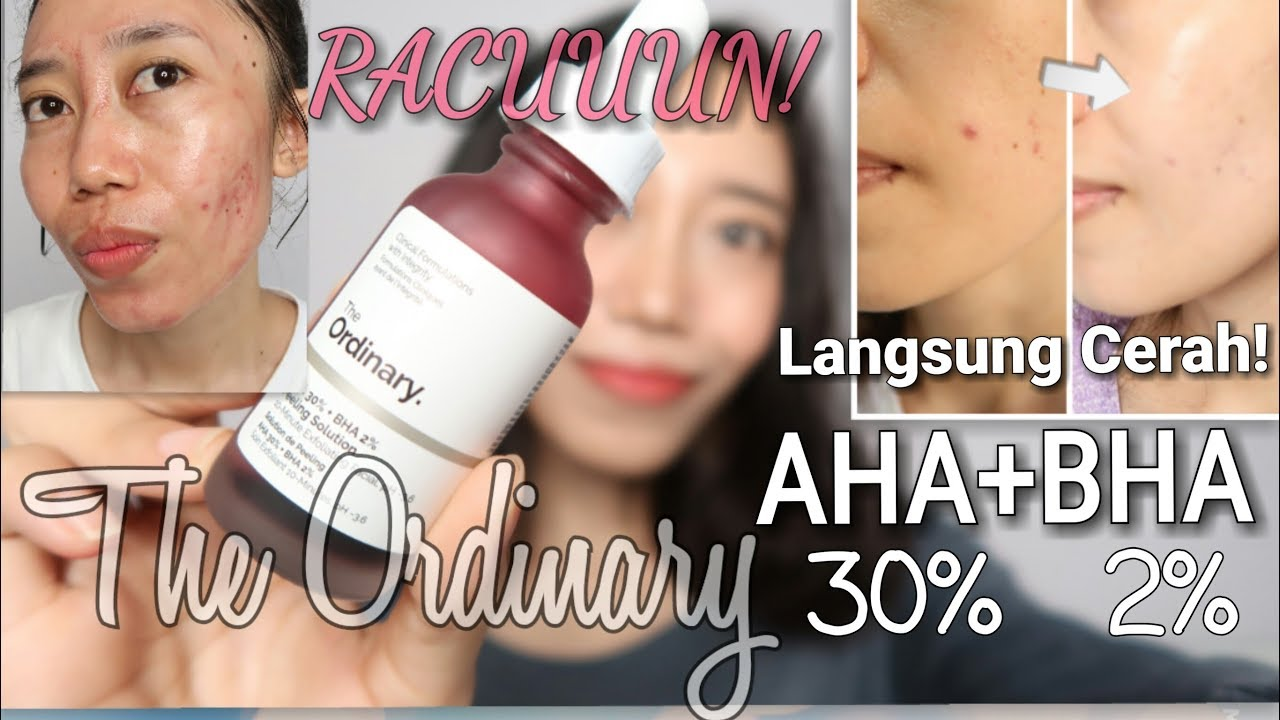Langsung Cerah The Ordinary Aha 30 Bha 2 Peeling Solution Review Novie Marru Youtube