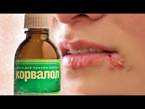Герпес на губах: 11 способов лечения герпеса быстро