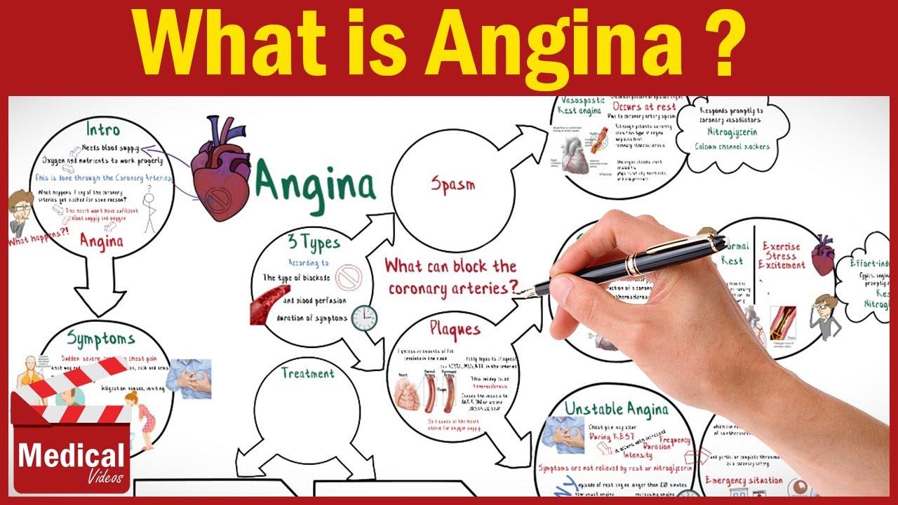 angina definition
