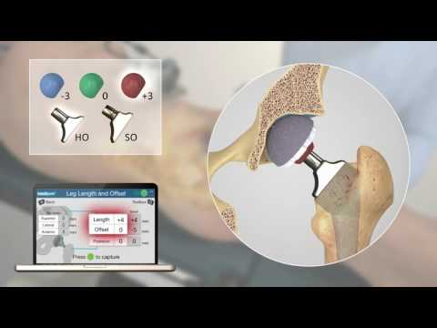 Intellijoint HIP 3D mini-optical navigation tool for THA – Video abstract [ID 119161]