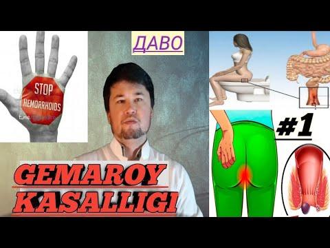 #Gemaroy #bavosil   ГЕМАРОЙ КАСАЛЛИГИ ХАК,ИДА ТУЛИК, ВИДЕО.