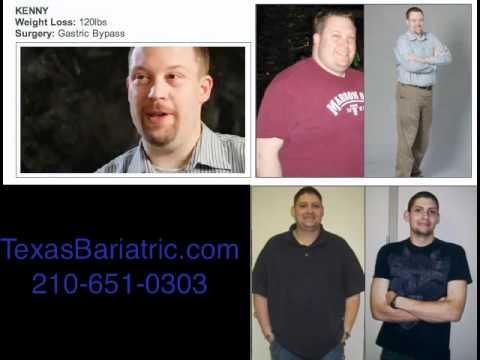 San Antonio Weight Loss Surgery San Antonio Gastric Bypass Youtube