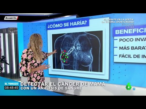 Analisis sangre cancer vejiga