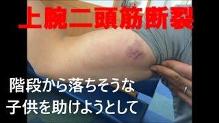 上腕二頭筋断裂|マッスル大木|子供を助けようとして 上腕三頭筋損傷 検索動画 11