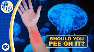 Does Peeing on a Jellyfish Sting Make it Stop Hurting?
