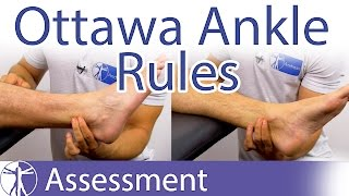 The Ottawa Ankle Rules | Ankle Fracture Clinical Prediction Rule