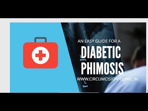 Circumcision Surgery in Diabetes,Diabetic Phimosis,Balanitis,Balanoposthitis,Fungal infections