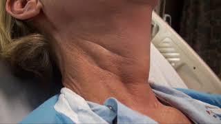 Regular Carotid Pulsation and Discernible Internal Jugular Venous Pulse