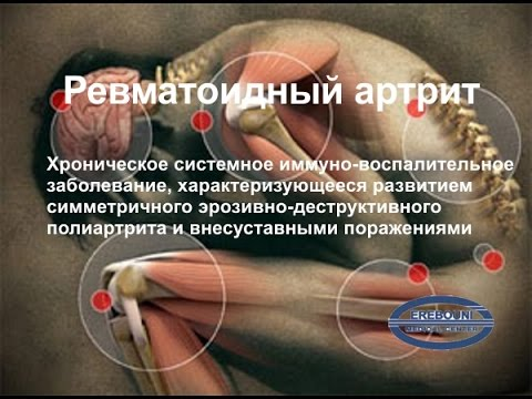 Артрит: симптомы, лечение, народные средства, диета