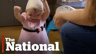 3D printing helps give girl a new face