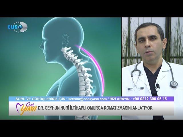 Ankilozan Spondilit ( İltihaplı Omurga Romatizması ) Dr. Ceyhun Nuri