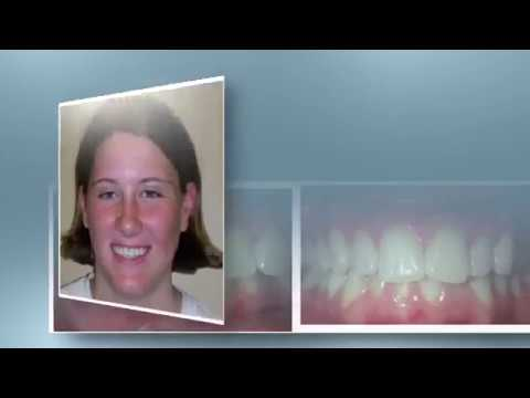 Kentucky Orthodontics & Invisalign: 3rd Molar Surgery