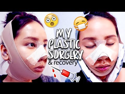 MY PLASTIC SURGERY IN KOREA   SURGERY DAY REGRET V-Line & Rhinoplasty RECOVERY