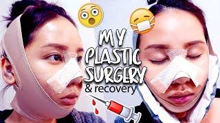 MY PLASTIC SURGERY IN KOREA | V-Line & Rhinoplasty Surgery & Recovery