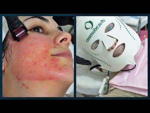 MICROAGULHAMENTO ~ Adeus Cicatrizes de acne! - Dermaroller