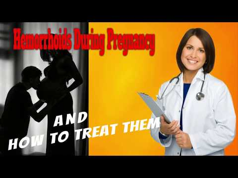 Hemorrhoids During Pregnancy and How To Treat Them