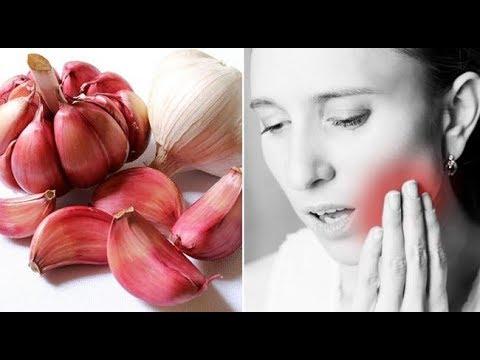Trị nhức răng cực nhanh và an toàn