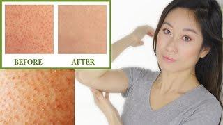 Keratosis Pilaris Treatment | Bumps On Skin
