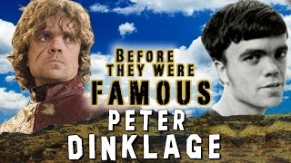 PETER DINKLAGE - Before They Were Famous