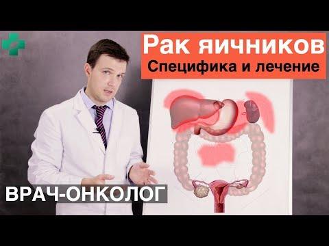Рак яичников. Специфика и лечение рака яичников