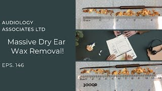 MASSIVE DRY EAR WAX REMOVAL - EP 146