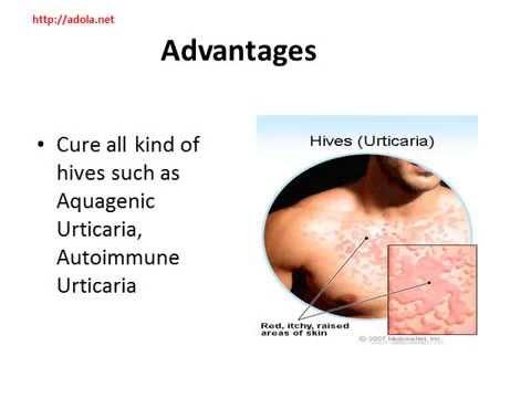 Natural Cure Hives Urticaria