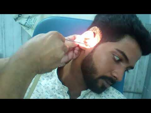Ear  Wax Treatment- Painful Hard Impacted Wax Removed  In A Handsome Guy- Dr Paulose FRCS (ENT)