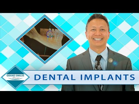 Receiving Dental Implants in Katy, TX